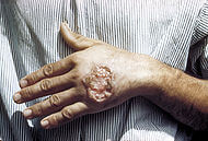 Feridas Infecciosas