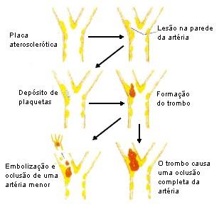 Arteriais